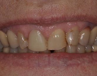 Total maxillary restoration with Layering technique