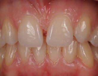 Restoration of 6 anterior of maxillary