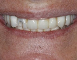 Total maxillary implant-supported fixed prosthesis