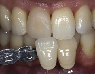 Restoration of 11 with Layering technique